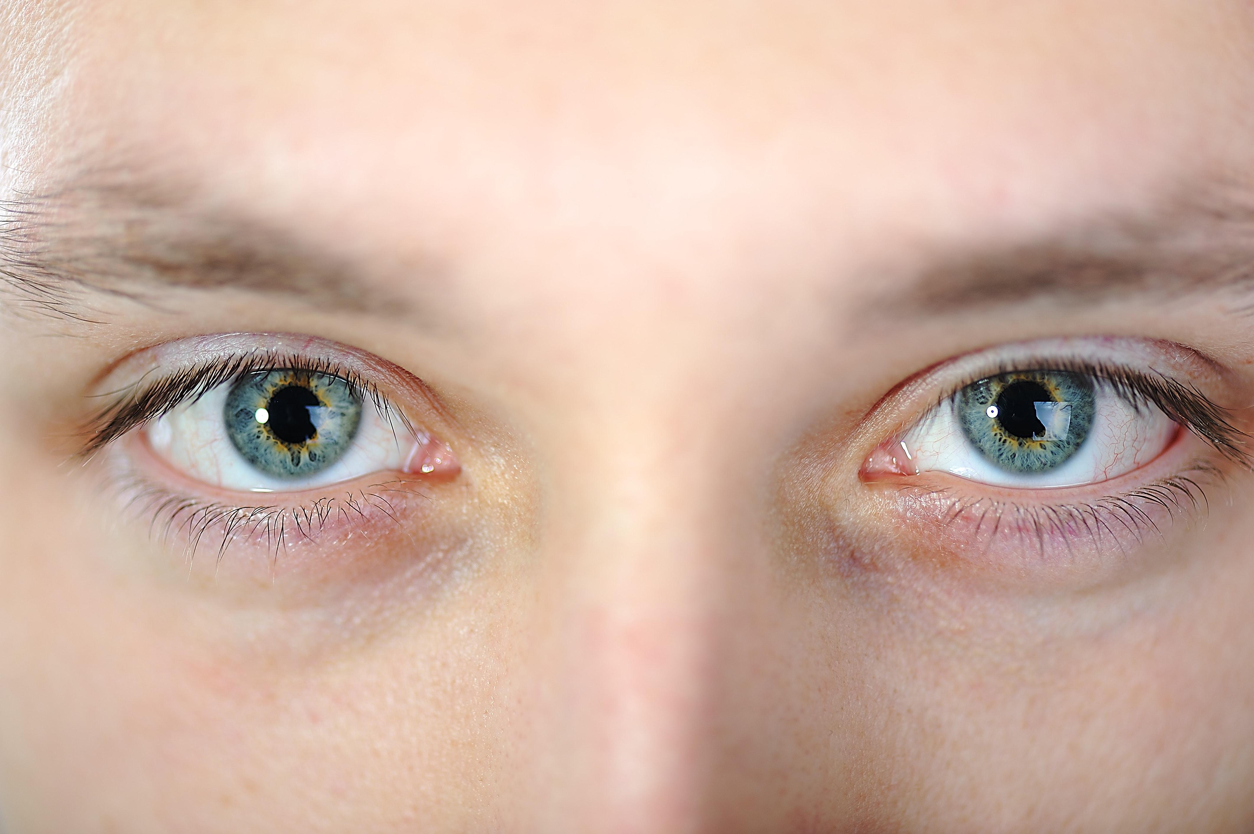 A conjuntivite acontece na membrana que envolve a parte branca dos olhos