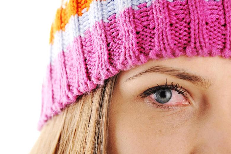 A conjuntivite alérgica pode ser causada por diversos fatores, como por exemplo ácaros, poeira e até mesmo por maquiagem.